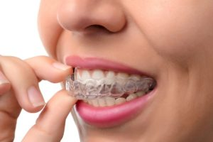 invisalign-in-homewood-il